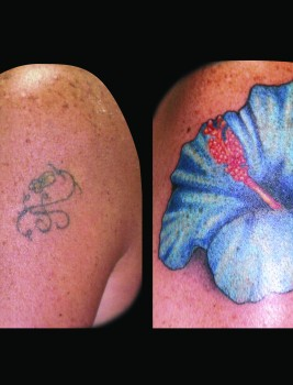Cody flower cover up
